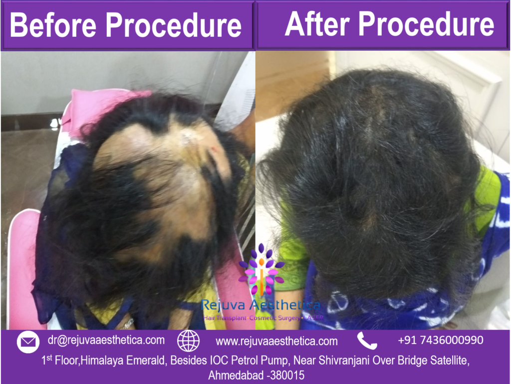before after alopecia treatment