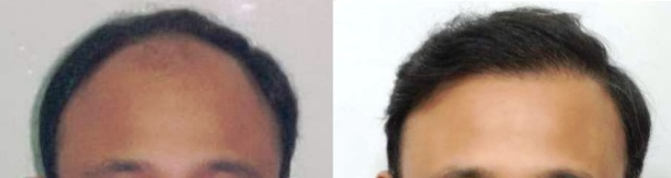 before-and-after-hair-transplant-india