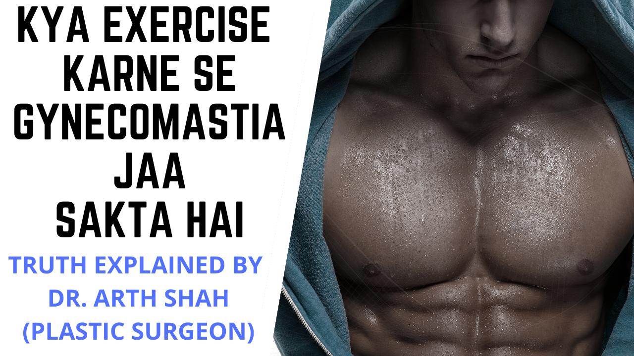 Gynecomastia Doctor in Gujarat
