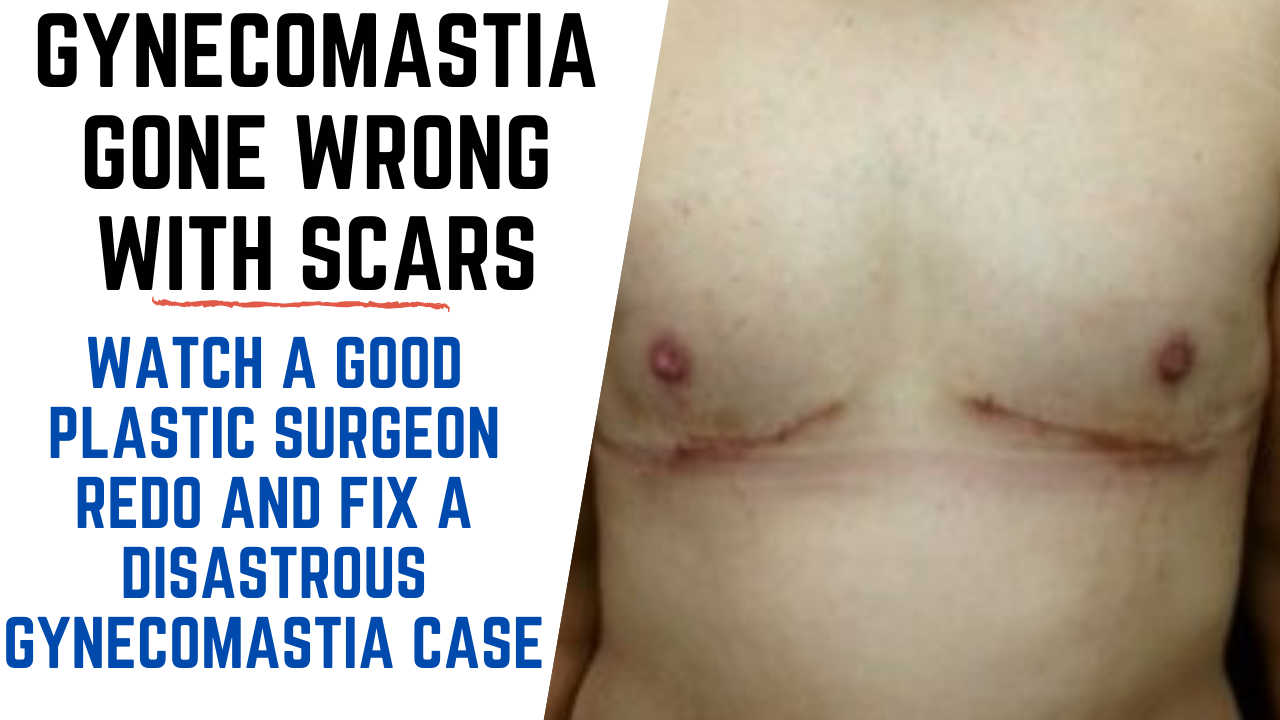 FIXING A DISASTROUS GYNECOMASTIA CASE PERFORMED BY NON QUALIFIED DOCTOR Botched Gynecomastia Surgery